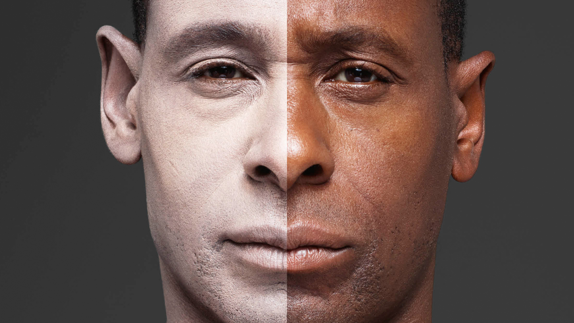 Image result for black skin to white skin